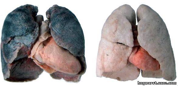 მოწევა კლავს ile ilgili görsel sonucu